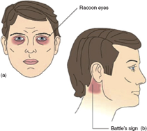 illustration of head bruises
